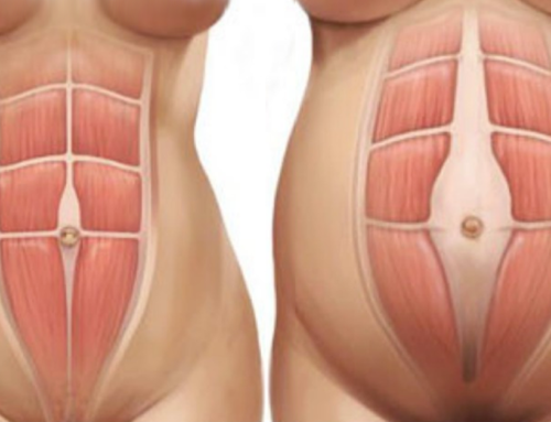 After Childbirth, Diastasis Recti Abdominis (DRA) Will Only Close Partially On Its Own